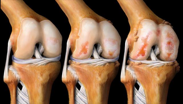 Сохраните рецепт! Это средство лечит колени, восстанавливает кости и суставы!
