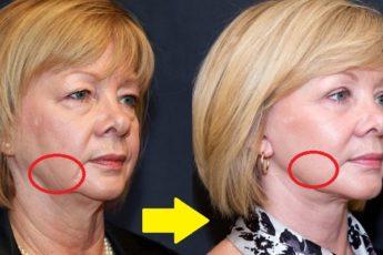 Подтянуть обвисшую кожу лица. Упражнение которое поможет в этом!