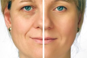 Если тебе больше 40, эти 3 упражнения сотворят чудо с твоим лицом и шеей. Работают на 200 %
