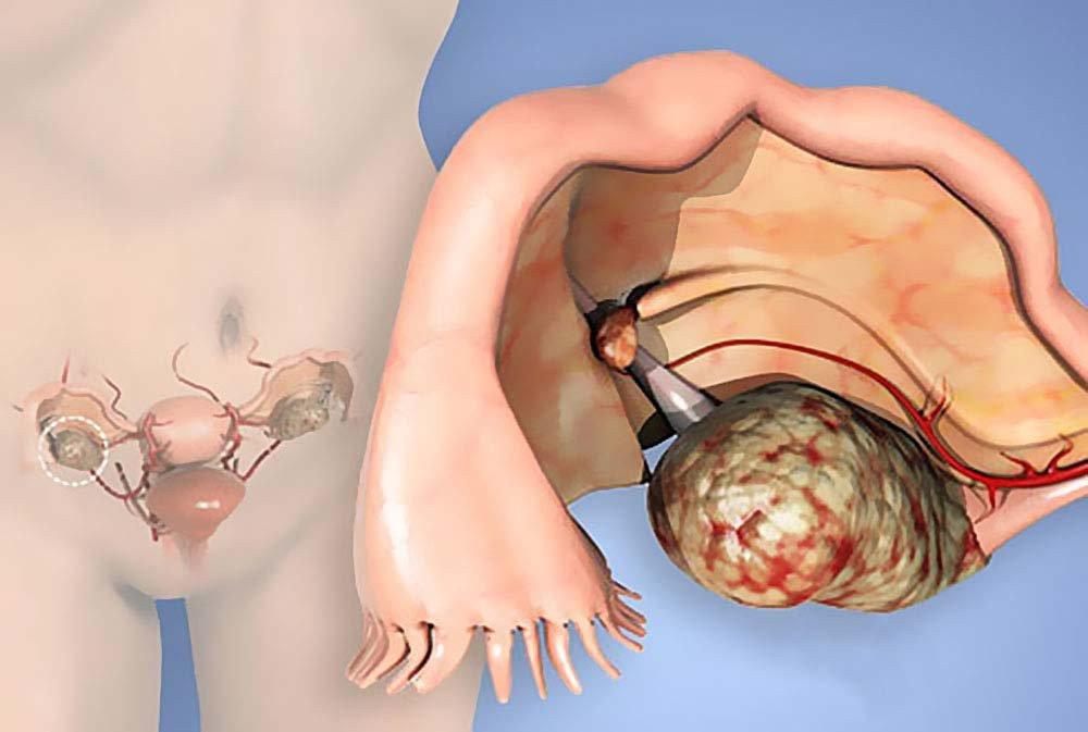 """По оценкам Американского онкологического общества, в США в предыдущем году более 22 000 женщинам поставили диагноз «рак яичников». По предварительным оценкам 14 000 из них умрут от этого заболевания, пишет CulturaColectiva. Почему эти цифры должны вас насторожить?Потому что это ″Тихая″ женская болезнь. Рак яичников часто протекает бессимптомно, поэтому его диагностируют на поздних стадиях. Ведущие онкологи утверждают, что в случае раннего обнаружения рака яичников продолжительность жизни составляет от 5 до 7 лет, если пациентка не старше 35 лет. <script async src=""""https://pagead2.googlesyndication.com/pagead/js/adsbygoogle.js""""></script> <ins class=""""adsbygoogle"""" style=""""display:block; text-align:center;"""" data-ad-layout=""""in-article"""" data-ad-format=""""fluid"""" data-ad-client=""""ca-pub-4444476664294868"""" data-ad-slot=""""2739302770""""></ins> <script> (adsbygoogle = window.adsbygoogle    []).push({}); </script> Опасность заключается в возможном рецидиве. 1) Обнаружение рака яичников. Во время научной конференции ко Всемирному дню борьбы с раком яичников (8 мая), ученые заявили, что каждые 6 месяцев женщине нужно проходить трансвагинальное УЗИ яичников. Особенно если в ее роду были те, кто имели такое заболевание. Первые симптомы, на которые следует обратить внимание, чтобы исключить рак яичников, очень похожи на симптомы колита. Важно отметить, что этот вид рака встречается в основном у женщин в возрасте от 30 лет. Самое важное, что это новообразование никоим образом не проявляет себя на первом этапе. Его симптомы легко спутать с другими заболеваниями. 2) Симптомы рака яичников: Периодическое или постоянное вздутие живота. Запор, расстройство желудка или частые боли в животе могут быть предупреждающим сигналом. Интенсивная и постоянная боль в области таза — один из главных симптомов. Боль в нижней части спины. Неконтролируемое мочеиспускание, боль и / или жжение при мочеиспускании. Стремительная потеря веса. Постоянное чувство усталости. Боль во время полового акта. Если вы обнаружил"""
