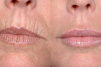 Как легко избавиться от глубоких морщин вокруг рта: 5 простых масок, творящих чудеса со стареющей кожей!