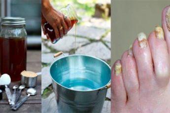 Мега простой метод избавления от грибка ногтей!