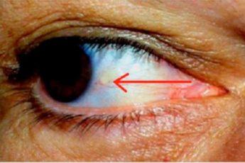 Наши глаза предупреждают нас об инфаркте!