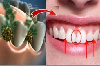 Устраните неприятный запах изо рта за 5 минут! Это средство уничтожит все бактерии, которые вызывают неприятный запах изо рта