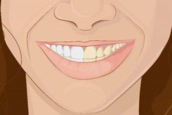 Как использовать кокосовое масло, чтобы получить сверкающую белую улыбку?