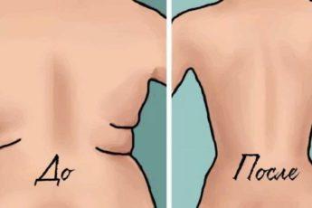 Как избавиться от складок на боках и спине — три эффективных действия