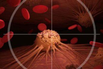 «Ни с того ни с сего не надувается»: виды рака, которые замечают слишком поздно
