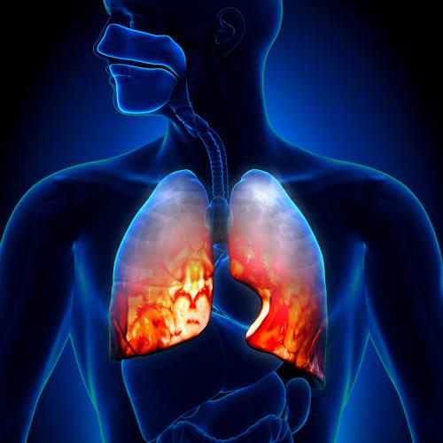 Как я вылечила воспаление легких за 1 день!